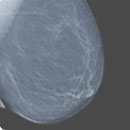 Breast Imaging CME