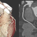 Cardiac CT CME